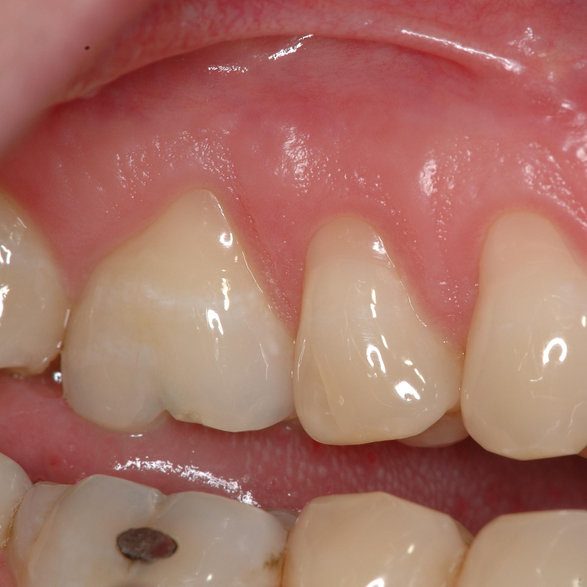 Zähne schmerzen nebenhöhlen ALLE MEINE