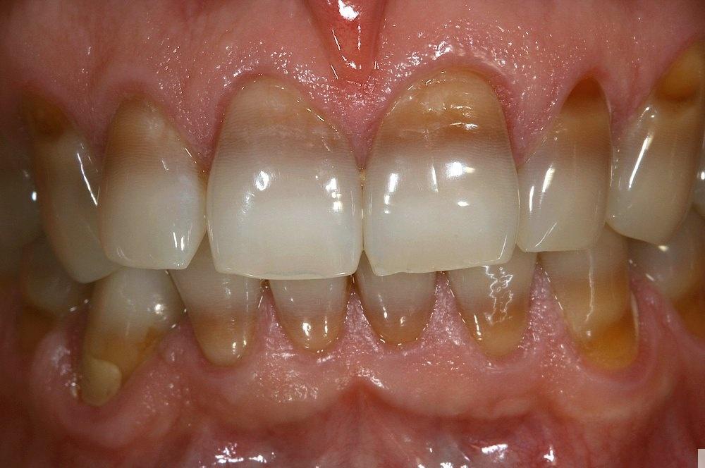 Graue verfärbung zahn Zahnunfall beim