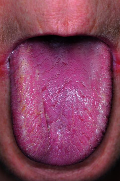 Zungenbelag weiße Weiße Zunge