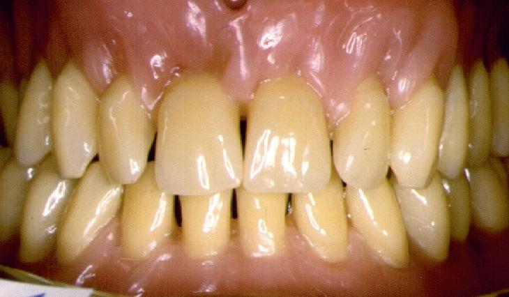 Jahren zahnprothese in jungen HFS Forum