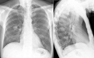 Lunge raucher und nichtraucher Raucherlunge vs.